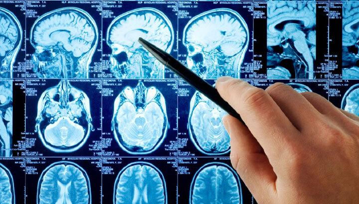 Neuro & Brain